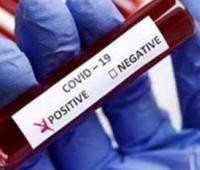 Collation of Hydroxychloroquine Virological Clearance, Effectiveness, Safety in Covid-19 Patients with Control Group (Conventional Therapy) – a Systematic Review and Meta-Analysis